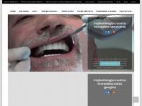 Implantologia a carico immediato - Dr. Maurizio Cirulli