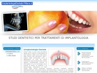 implantologiadentale-milano.it implantologia dentale carico immediato